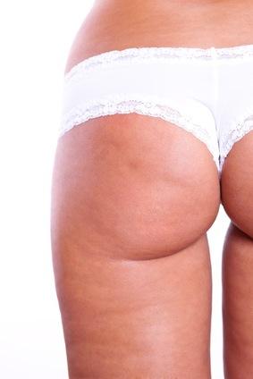 gegen cellulite am po und oberschenkel